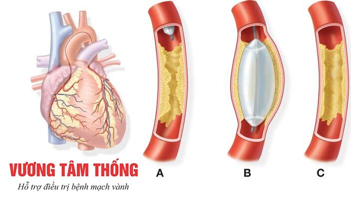 Hình ảnh mạch vành trước và sau khi nong mạch